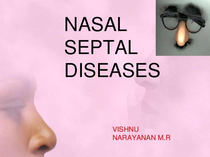 NASALSEPTALDISEASES    VISHNU    NARAYANAN M.R