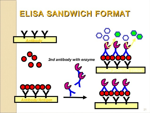 elisa and ria Download/view the pdf radioimmunoassay (ria), and enzyme-linked immunosorbent assay (elisa), and competitive inhibition assay radioimmunoassay (ria) and enzyme.