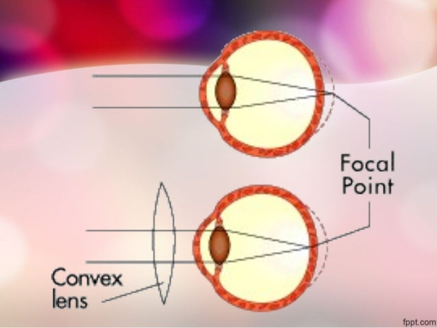 Vision defects and corrective lenses