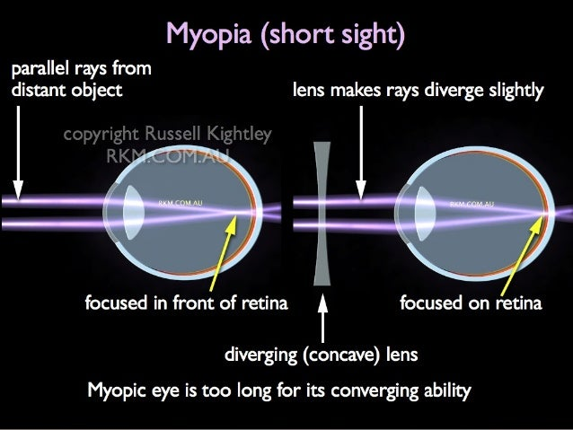 eye lens defect