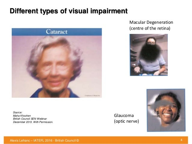 Different types of visual impairment 4 Source: Maha Khochen British Council SEN Webinar December 2013. With Permission. Ma...