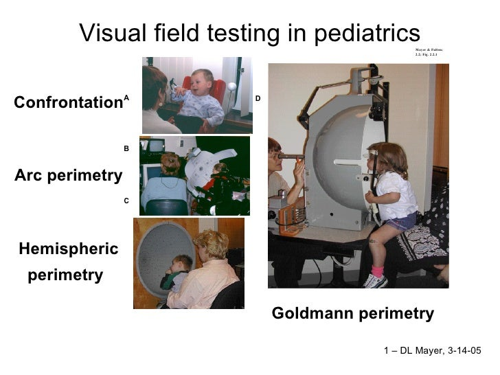 Visual field testing in pediatrics Confrontation  Arc perimetry  Hemispheric perimetry   Goldmann perimetry  1 – DL Mayer,...