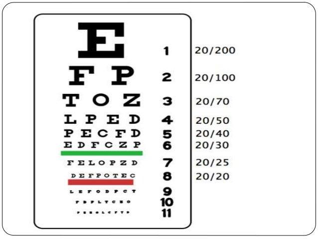 logmar chart: Visual acuity 2