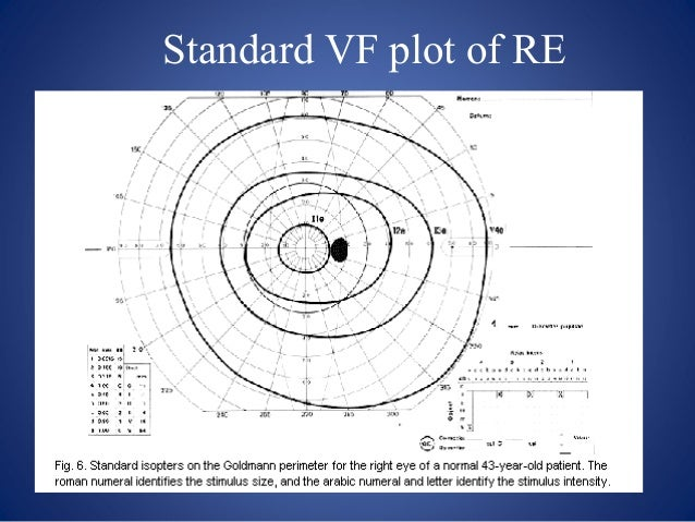 how to read goldmann visual field results