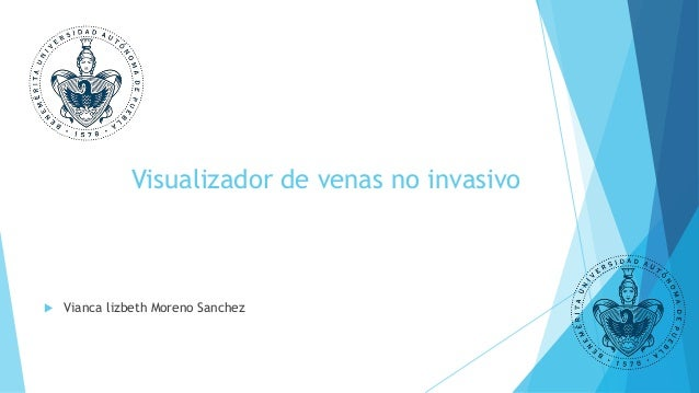 Visualizador de venas no invasivo  Vianca lizbeth Moreno Sanchez