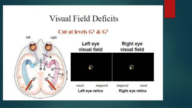 Visual pathways and optic nerve.