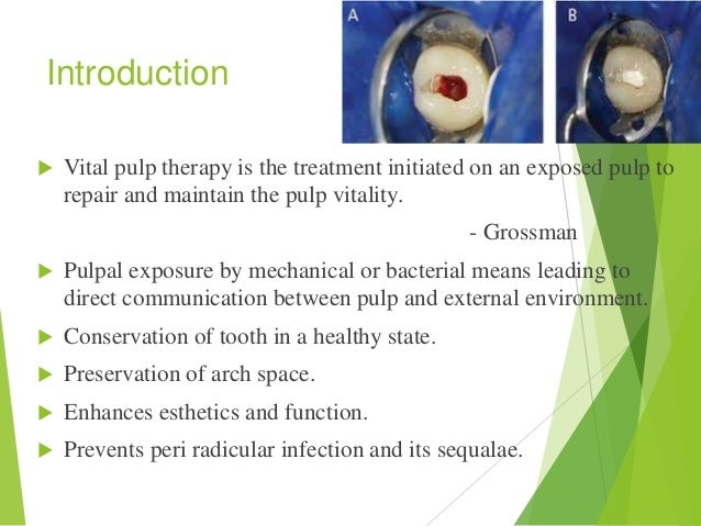Vital pulp therapy Slide 2