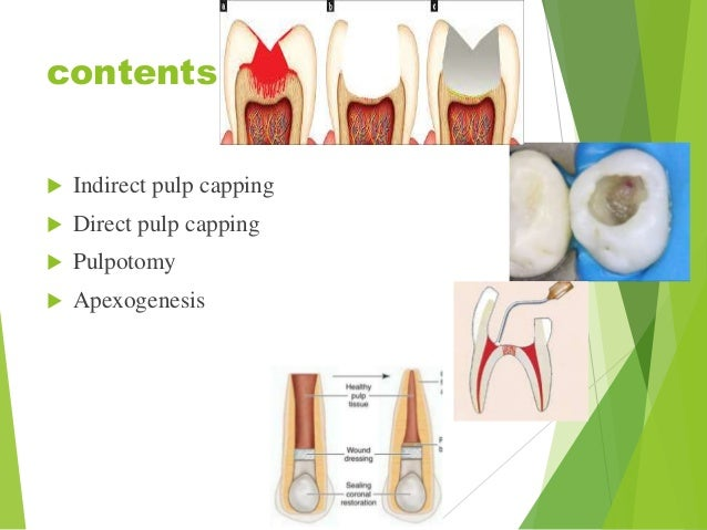 Vital pulp therapy Slide 3