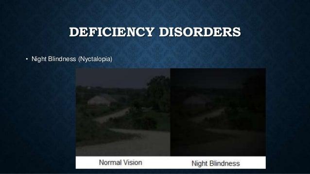 Night Blindness, Congenital Stationary, CSNBAD3