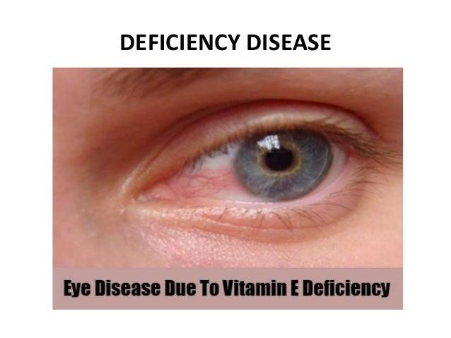 Vitamin e deficiency in humans