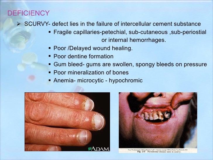 DEFICIENCY <ul><li>SCURVY- defect lies in the failure of intercellular cement substance </li></ul><ul><ul><ul><ul><li>Frag...