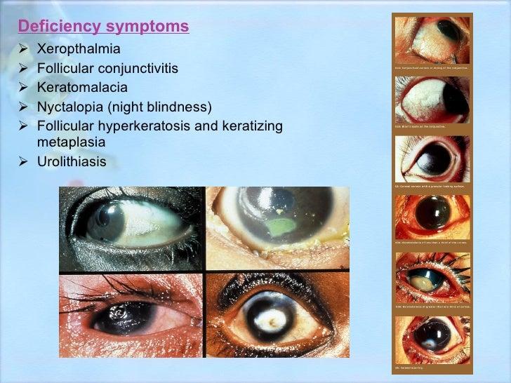 Deficiency symptoms <ul><li>Xeropthalmia </li></ul><ul><li>Follicular conjunctivitis </li></ul><ul><li>Keratomalacia </li>...