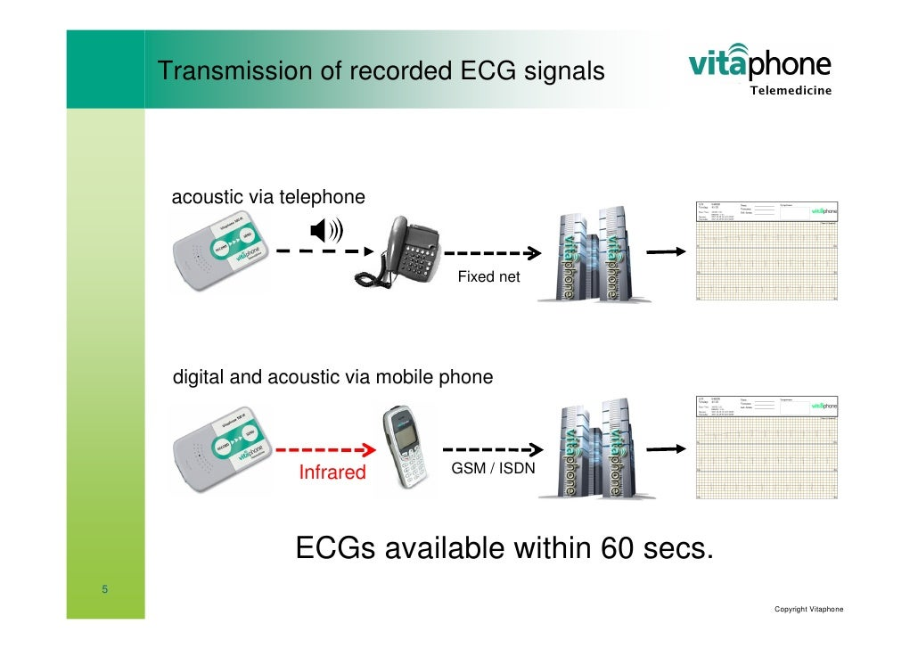 Vitaphone Tele Ecg System