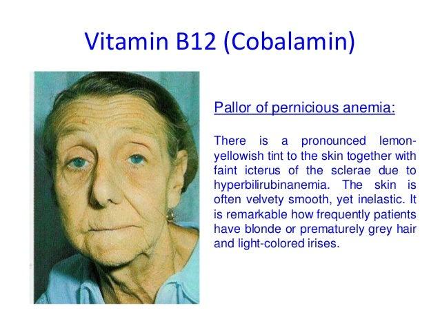 Vit b12 B12 Deficiency Skin