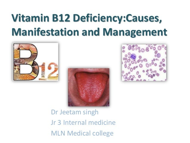 Vit b12 deficiency causes and management B12 Deficiency