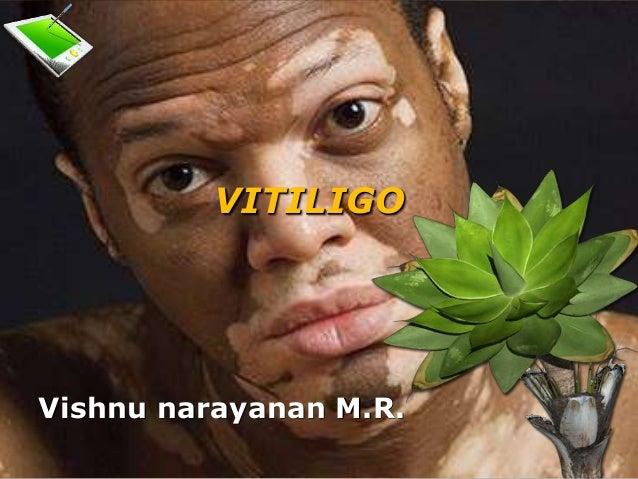 VITILIGO Vishnu narayanan M.R.