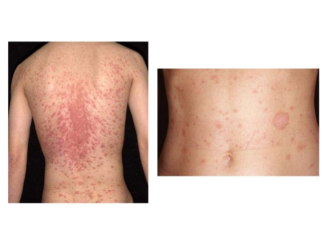 Christmas Tree Rash On Back Bestholidaydeals Co