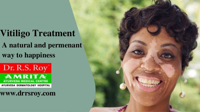 www.drrsroy.com Vitiligo Treatment A natural and permenant way to happiness