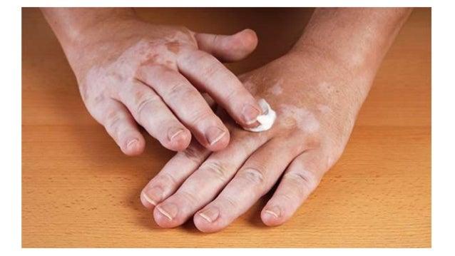 Weiße Flecken Auf Der Haut: Vitiligo
