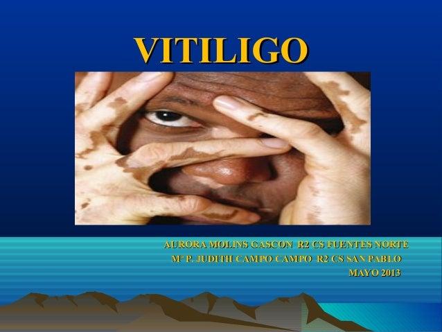 VITILIGOVITILIGOAURORA MOLINS GASCON R2 CS FUENTES NORTEAURORA MOLINS GASCON R2 CS FUENTES NORTEMª P. JUDITH CAMPO CAMPO R...