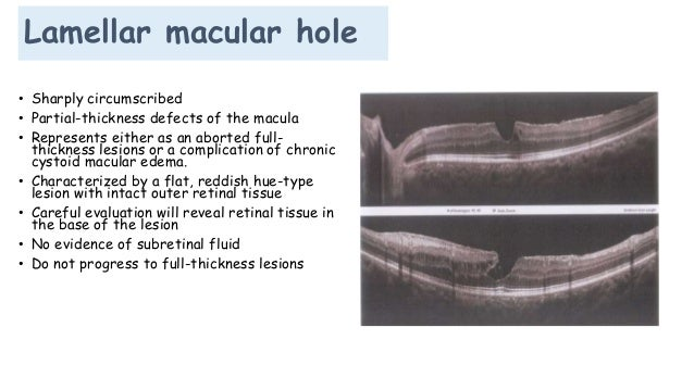 Partial Thickness Macular Hole