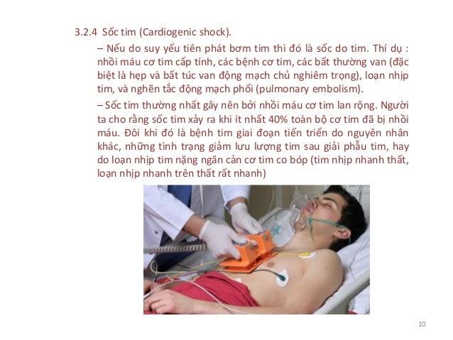 3.2.4 Sốc tim (Cardiogenic shock). – Nếu do suy yếu tiên phát bơm tim thì đó là sốc do tim. Thí dụ : nhồi máu cơ tim cấp t...