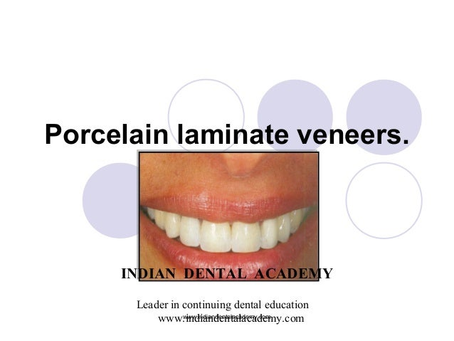 Porcelain laminate veneers. INDIAN DENTAL ACADEMY Leader in continuing dental education www.indiandentalacademy.comwww.ind...