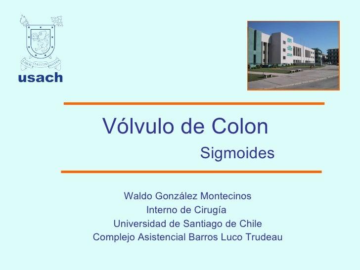 Vólvulo de Colon   Sigmoides Waldo González Montecinos Interno de Cirugía  Universidad de Santiago de Chile Complejo Asist...