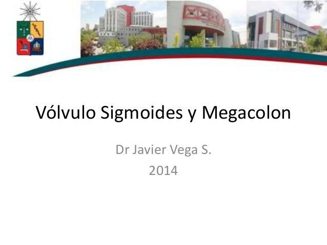 Vólvulo Sigmoides y Megacolon Dr Javier Vega S. 2014