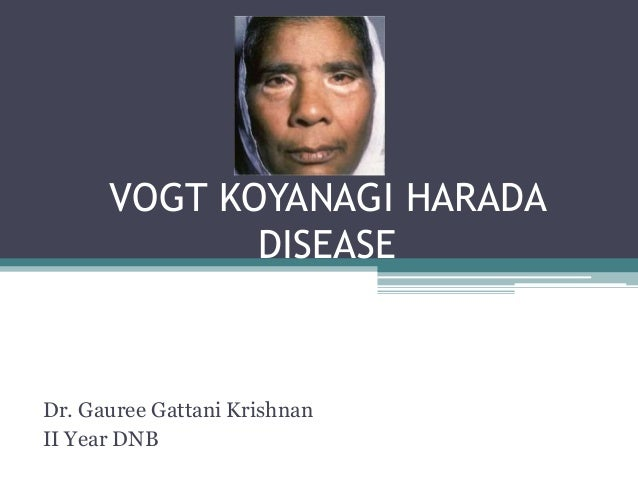 VOGT KOYANAGI HARADA DISEASE Dr. Gauree Gattani Krishnan II Year DNB