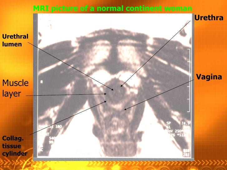 Urethra Vagina Urethral lumen Collag. tissue cylinder Muscle layer MRI picture of a normal continent woman