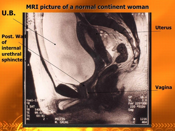 U.B.  Post. Wall of internal urethral sphincter. Uterus Vagina MRI picture of a normal continent woman