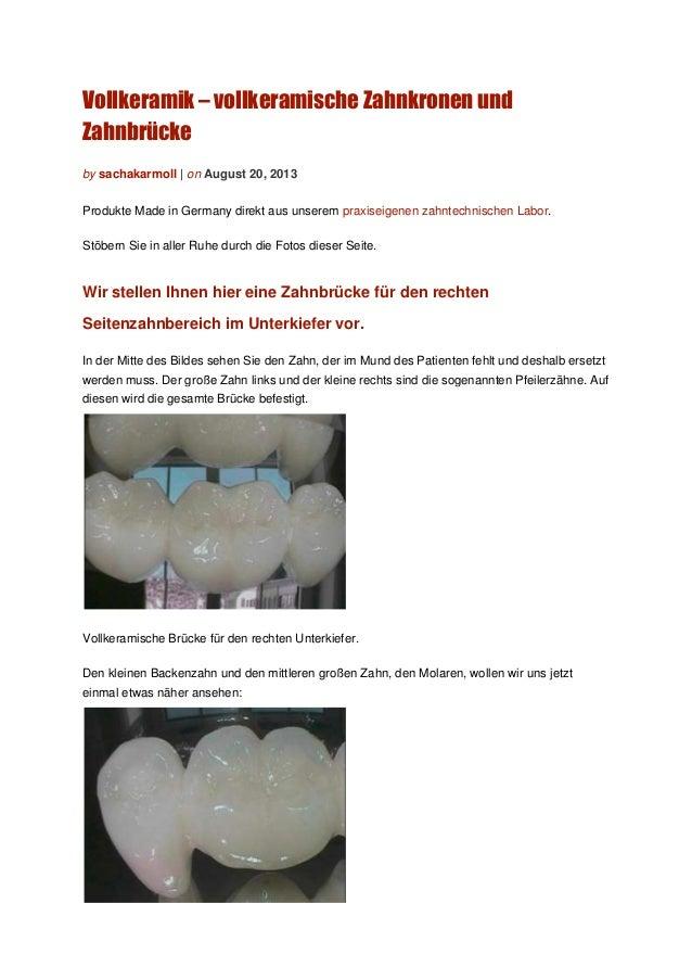 Vollkeramik – vollkeramische Zahnkronen und Zahnbrücke by sachakarmoll | on August 20, 2013 Produkte Made in Germany direk...