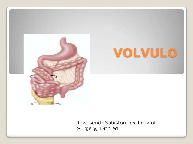VOLVULO Townsend: Sabiston Textbook of Surgery, 19th ed.