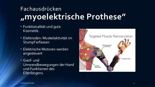 Myoelektrik