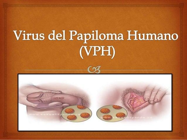 Qué es?     Papiloma o condiloma significa  protuberancia* crónica y son  conocidos como verrugas genitales. El  virus d...