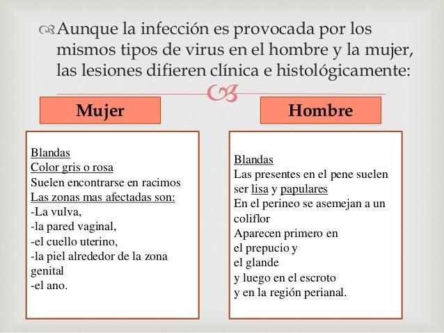 El virus de papiloma  humano en los hombres     La mayoría de los hombres que tienen el VPH no  presentan ningún síntoma...