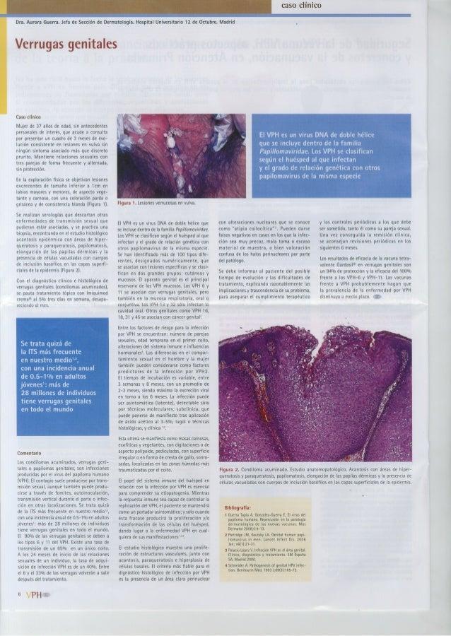 caso clinico  Dra.  Aurora Guerra.  Jefa de Sección de Dermatología.  Hospital Universitario 12 de Octubre.  Madrid  Verru...