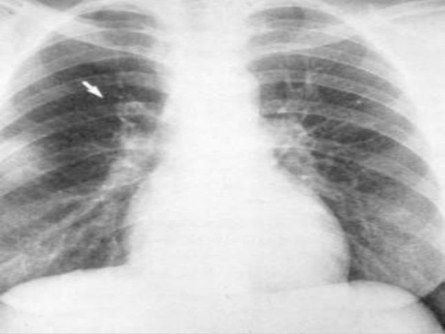 VQ scan of lung