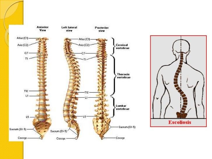 Vértebras Y Columna Vertebral Mp
