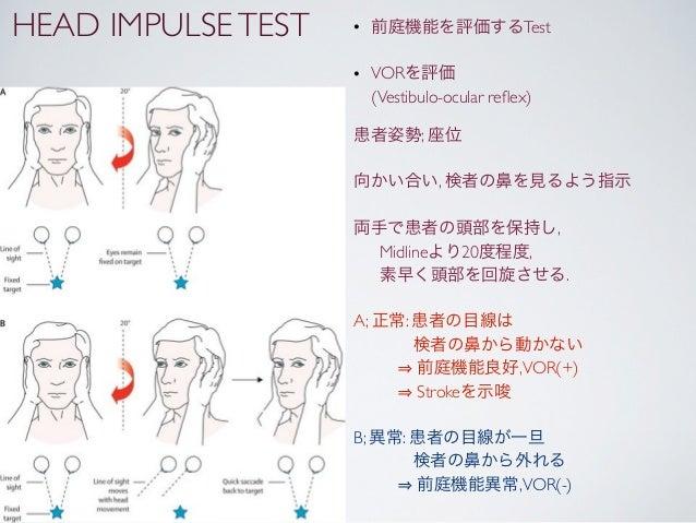 HEAD IMPULSE TEST   • 前庭機能を評価するTest                    • VORを評価                      (Vestibulo-ocular reflex)             ...