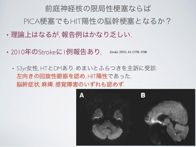 前庭神経核の限局性                塞ならば         PICA 塞でもHIT陽性の脳幹                   塞となるか?•   理論上はなるが, 報告例はかなり乏しい.•   2010年のStrokeに1例...