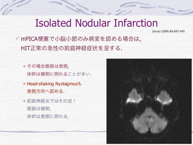 Isolated Nodular Infarction                             Stroke 2009;40:487-491mPICA 塞で小脳小節のみ病変を認める場合は,HIT正常の急性の前庭神経症状を呈する....