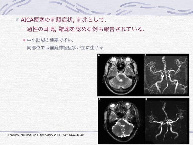 disappearance. All patients with acute auditory syndrome                                            also had transient ver...