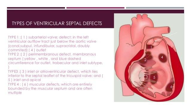 Ventricular septal defect types