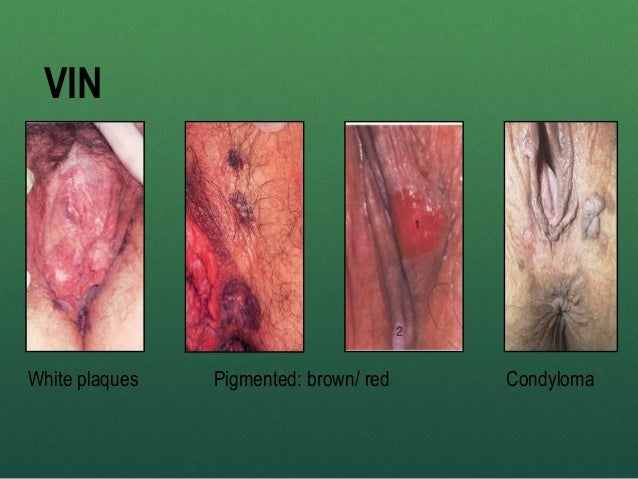 pictures of vulvar cancer lesions