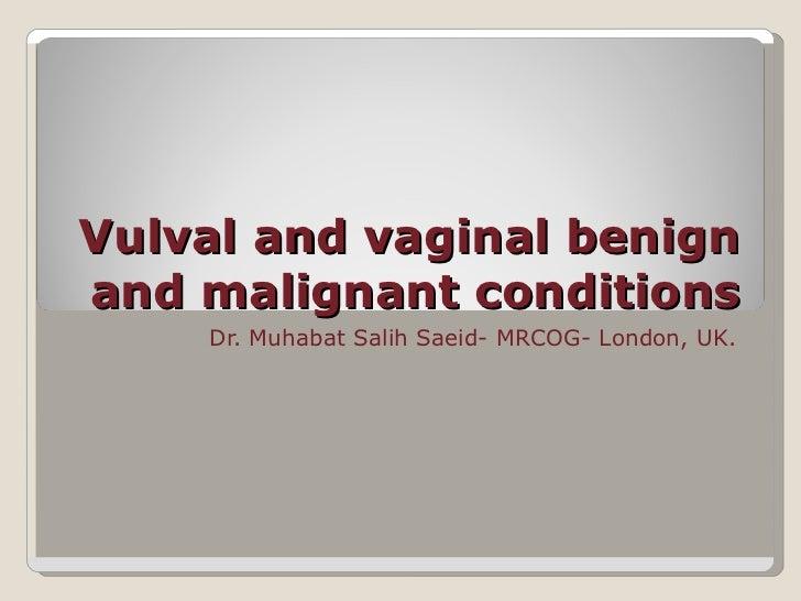 Vulval and vaginal benignand malignant conditions    Dr. Muhabat Salih Saeid- MRCOG- London, UK.