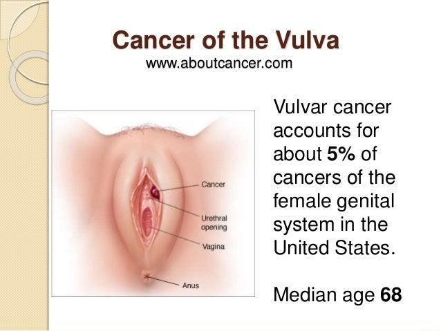 Cancer picture vulva