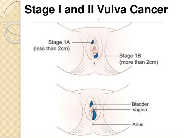 Lump in the vulva area