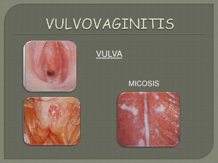 vulvovaginitis en niñas tratamiento pdf